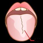 舌が白い!?口臭の原因にもなる舌苔は意外にもリステリンで消えました